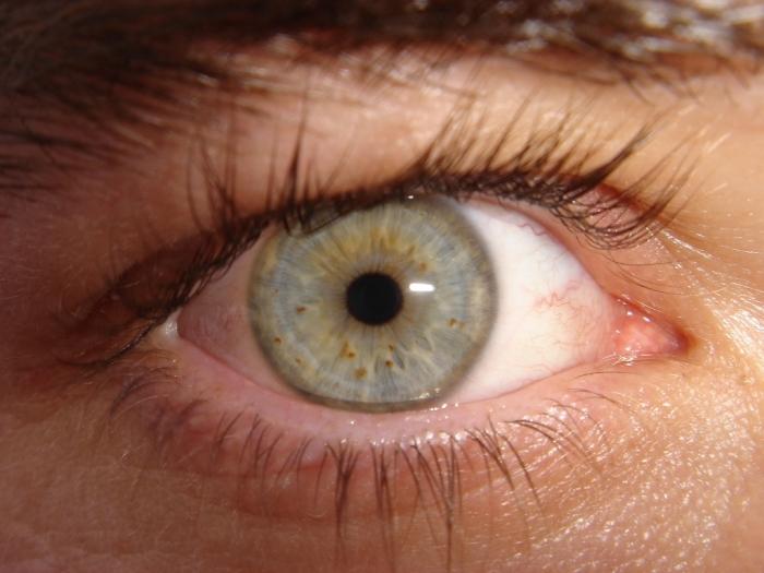 My_eye