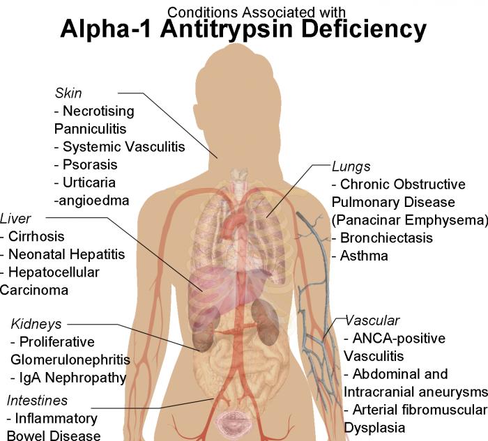 Alpha-1-Antitrypsin Deficiency (A1AD)