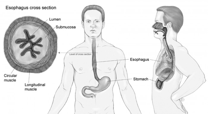 Esophagectomy