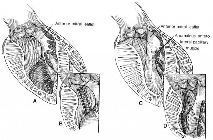 Septal Myotomy