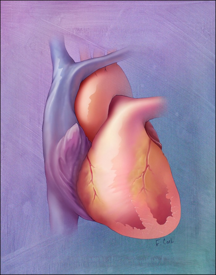 Surgical Ventricular Restoration