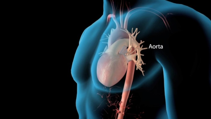 Thoracic Aortic Dissection Repair