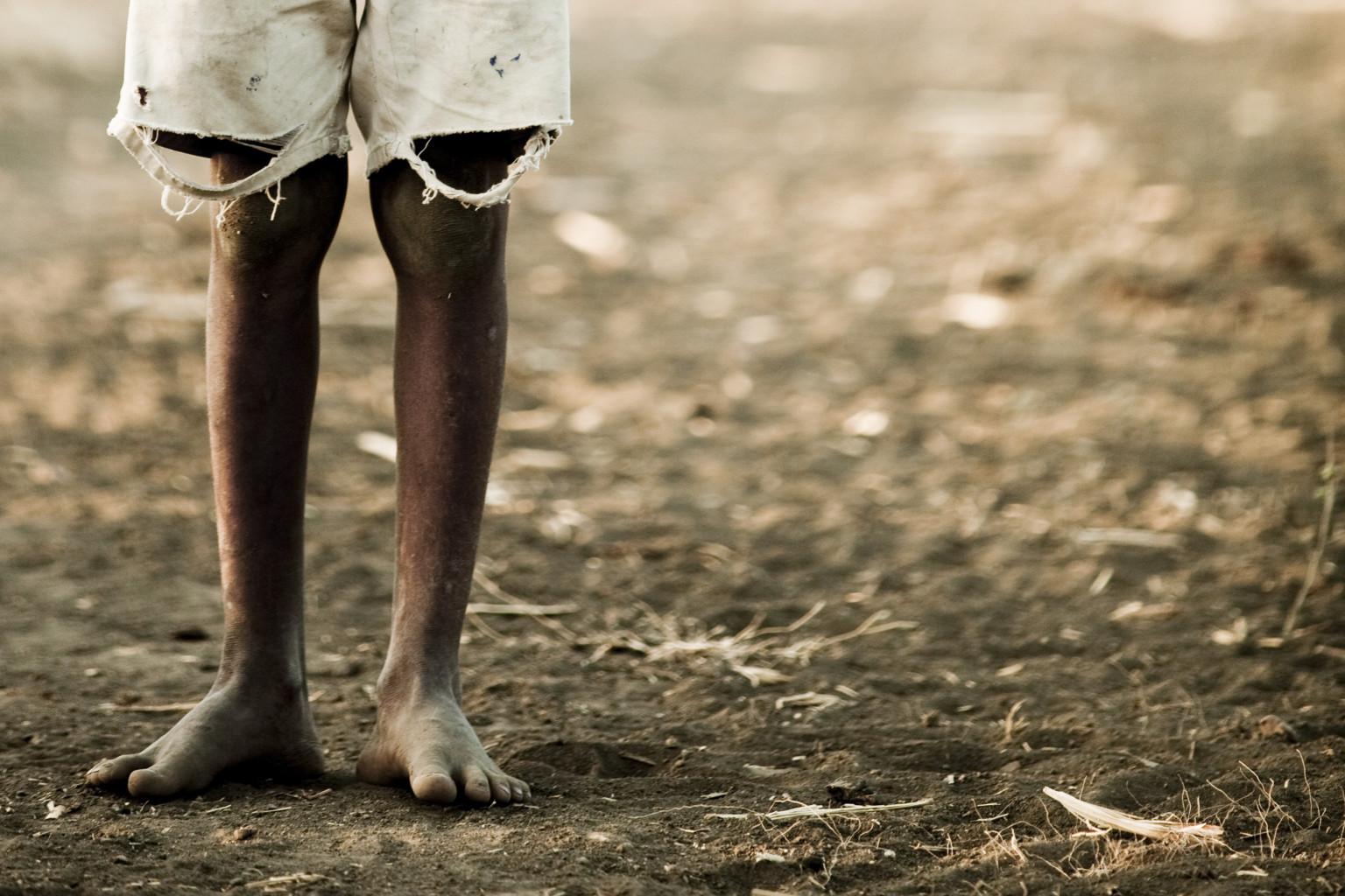 diseases in africa 3
