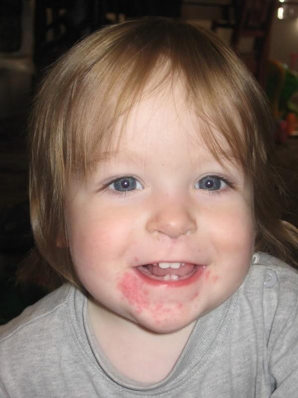 Top 10 Most Common Diseases In Children