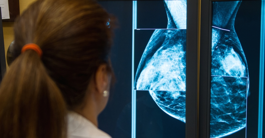 Ask about breast density