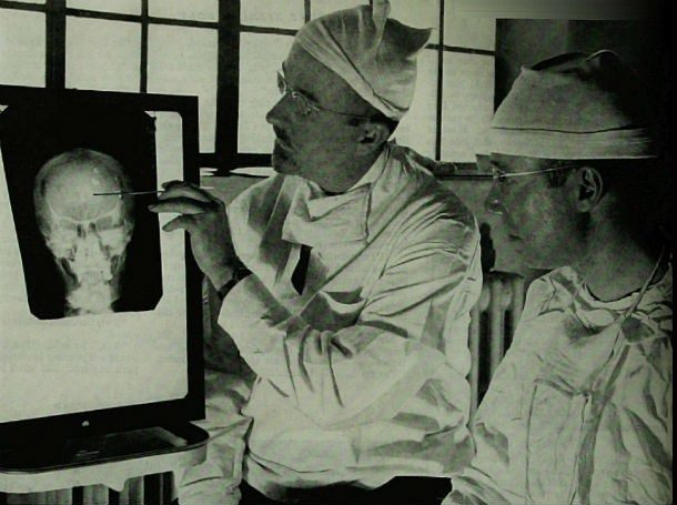 Lobotomy wasn't a successful procedure