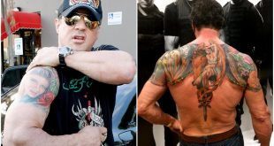 Top 10 Strangest Stories behind the Scars of Celebrities