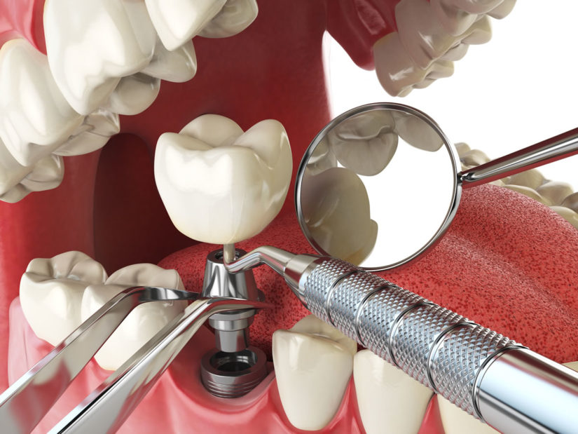 Photo of The 10 Criteria to Choose a Top Dental Implant Surgeon