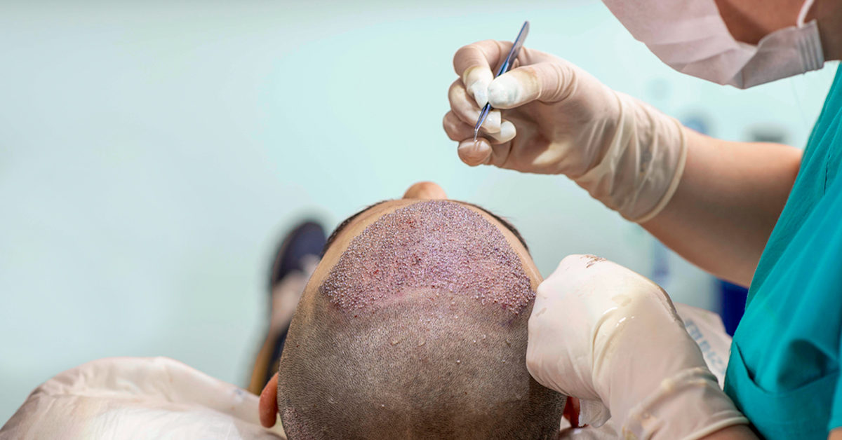 Will you need another hair transplantation?